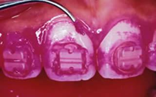 歯磨きで落としきれなかったプラーク(歯垢)