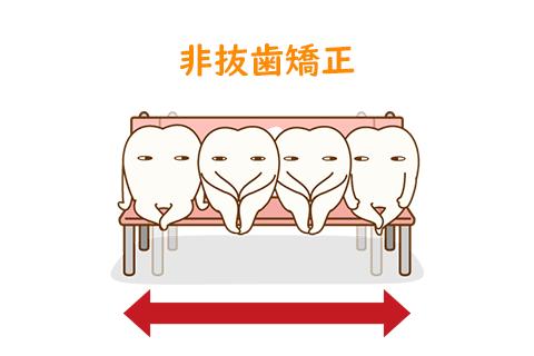 非抜歯矯正