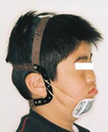 チンキャップ(オトガイ帽装置)