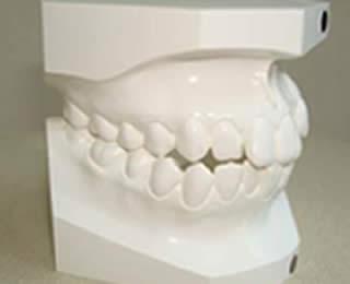 歯型の石膏模型